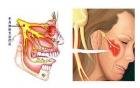 """【千里寻医】有一种撕心裂肺的痛叫做""""三叉神经痛"""",别再当牙痛治疗!"""