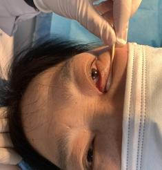 60岁婆婆眼角总是有眼屎 一查竟是眼睛长了结石